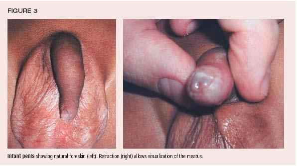 Evaluate the degree of foreskin retraction and meatal location and